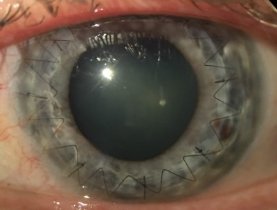 EyePhotoDoc picture of corneal transplant by Dr. Matthew Kim